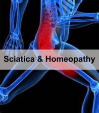 sciatica and homeopathy Dr samir Chaukkar